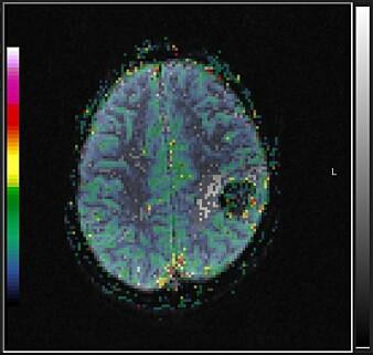 Fargeskalaen i bildet viser volumet av blod i hvert område i hjernen og er lagt på toppen av svart-hvitt bildet.