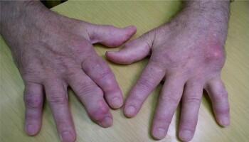 Bildet viser en stor urinsyreavleiring på hånden til høyre og flere mindre avleiringer på langfingeren på hånden til venstre.