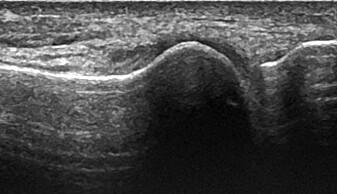 Bildet øverst viser ultralydbilde av et normalt stortåledd, mens bildet under viser ultralydbilde av et stortåledd med avleiringer.