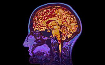 Dette skjer i hjernen når du prøver å huske noe