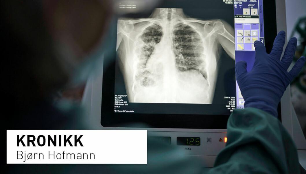 Hvert år dør rundt 100 personer av kreft på grunn av røntgenstråling. Hvis nytten av en røntgenundersøkelse er stor, er det ingen tvil: Risikoen er liten og du bør ta undersøkelsen. Men hvis nytten er liten eller null, bør du tenke deg godt om, skriver Bjørn Hofmann.