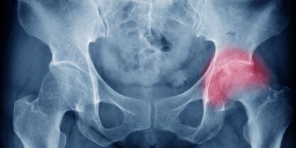 Færre kvinner får hoftebrudd, men kan vi forebygge enda flere?